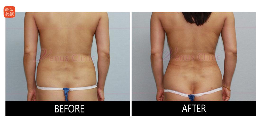 case1_abdomen_waist3.jpg