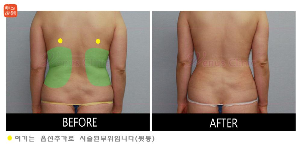 desaign_abdomen_waist2.jpg