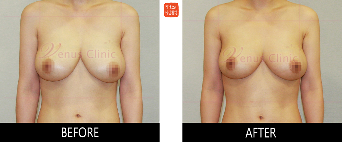 breast_liposuction-1.jpg