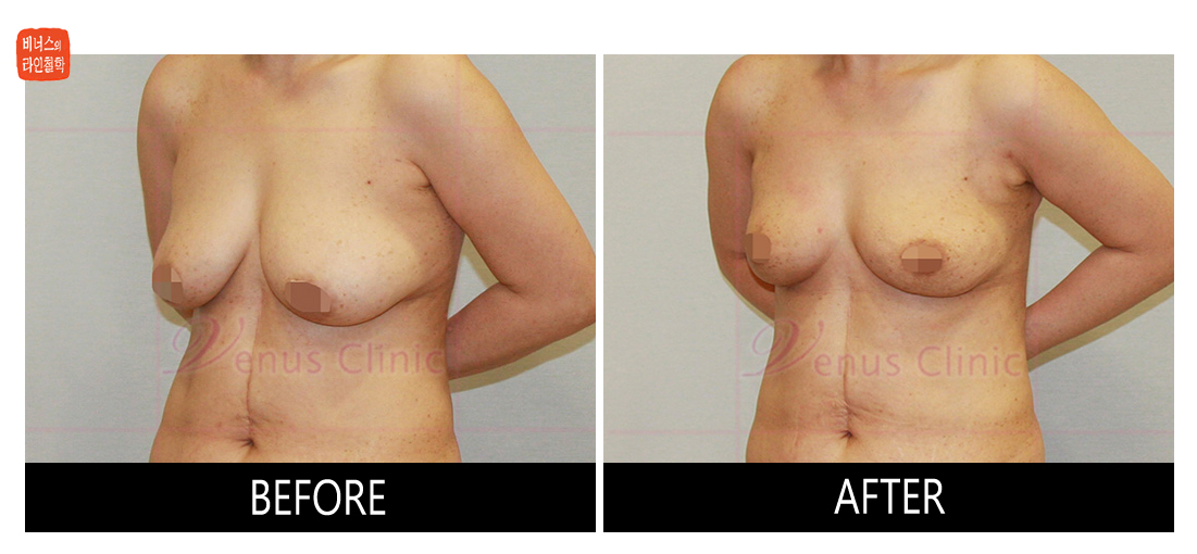 가슴축소 지방흡입 전후사진3