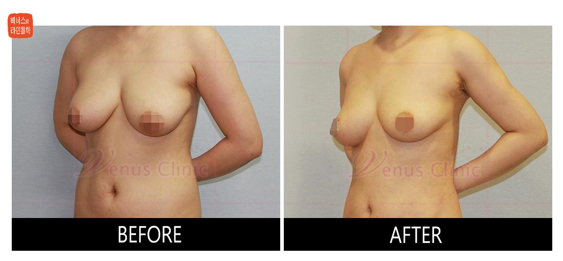 가슴축소 지방흡입 전후사진1