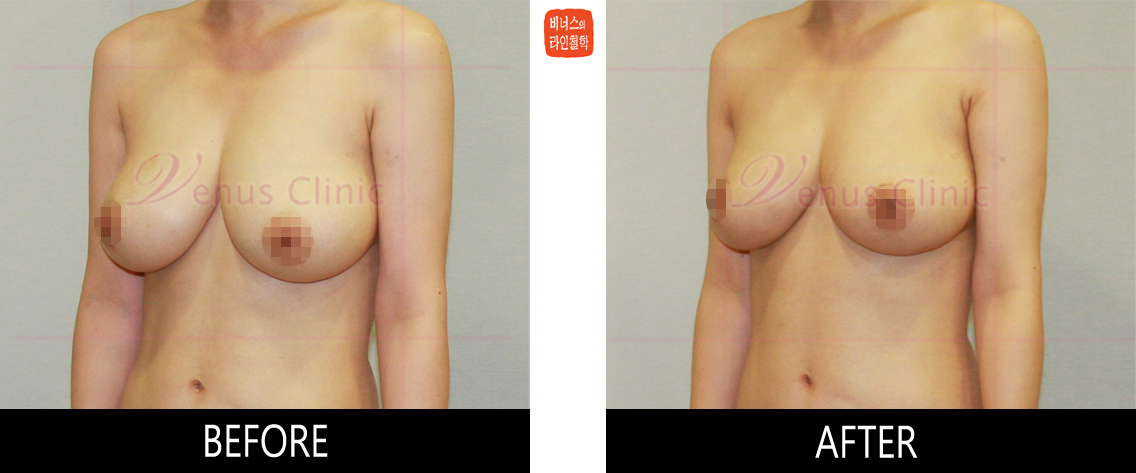 breast_liposuction-2.jpg