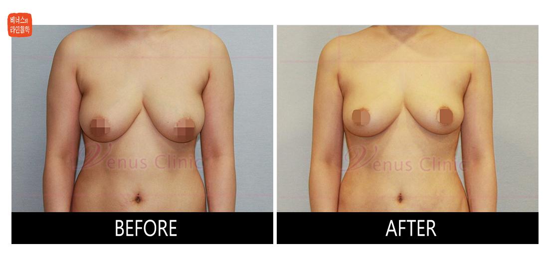 가슴축소 지방흡입 전후사진