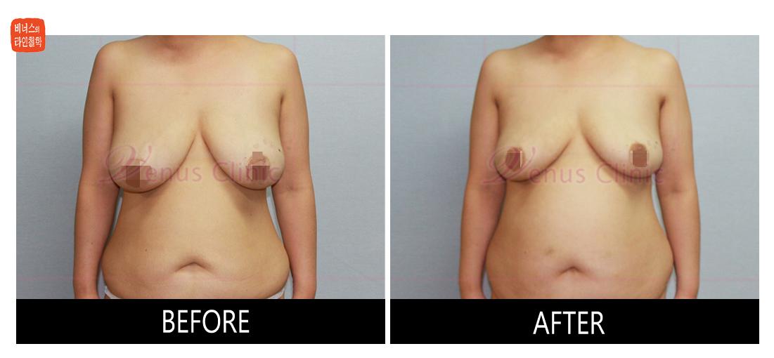 가슴축소 지방흡입 전후사진5