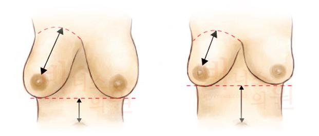 가슴축소 지방흡입-5.jpg