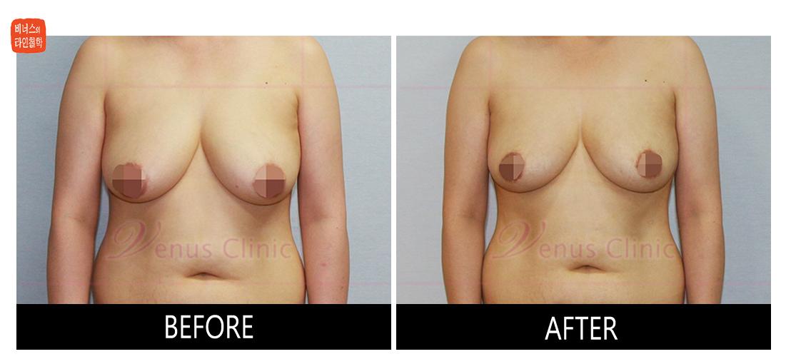 가슴축소 지방흡입 전후사진2
