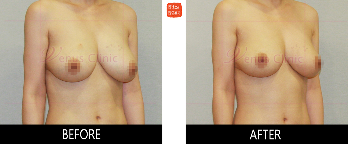 breast_liposuction-4.jpg
