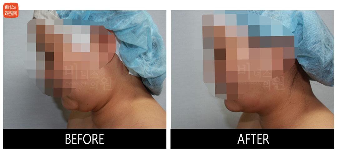 얼굴과 턱 지방흡입 전후사진6