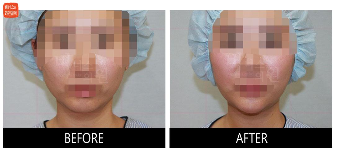 얼굴과 턱 지방흡입 전후사진10