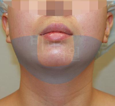 얼굴과 턱 지방흡입 전후사진2