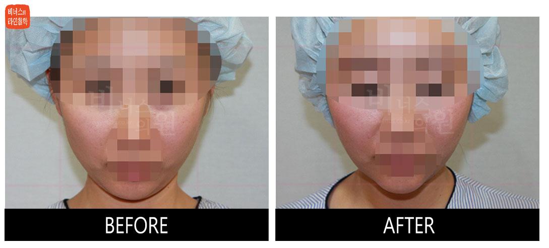 얼굴과 턱 지방흡입 전후사진11