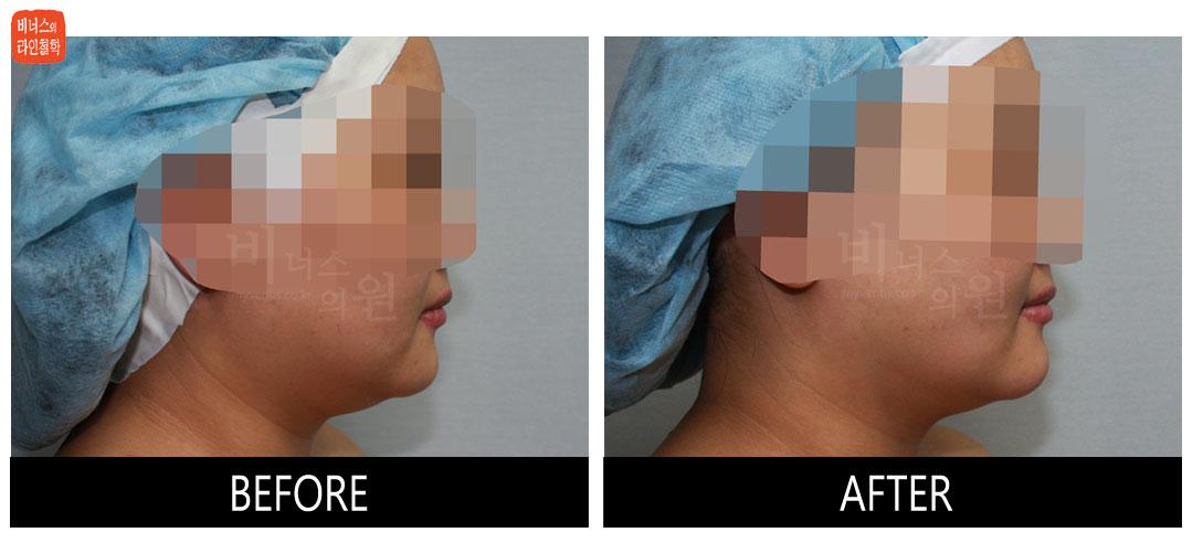 얼굴과 턱 지방흡입 전후사진5