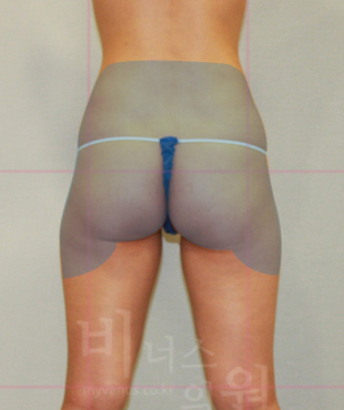 thigh_buttockup.jpg