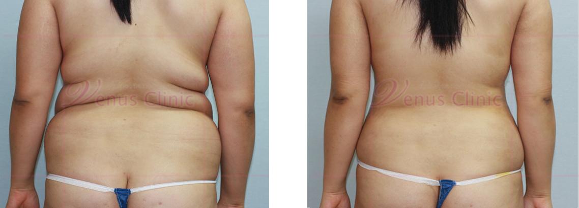 복부 지방흡입 전후사진3