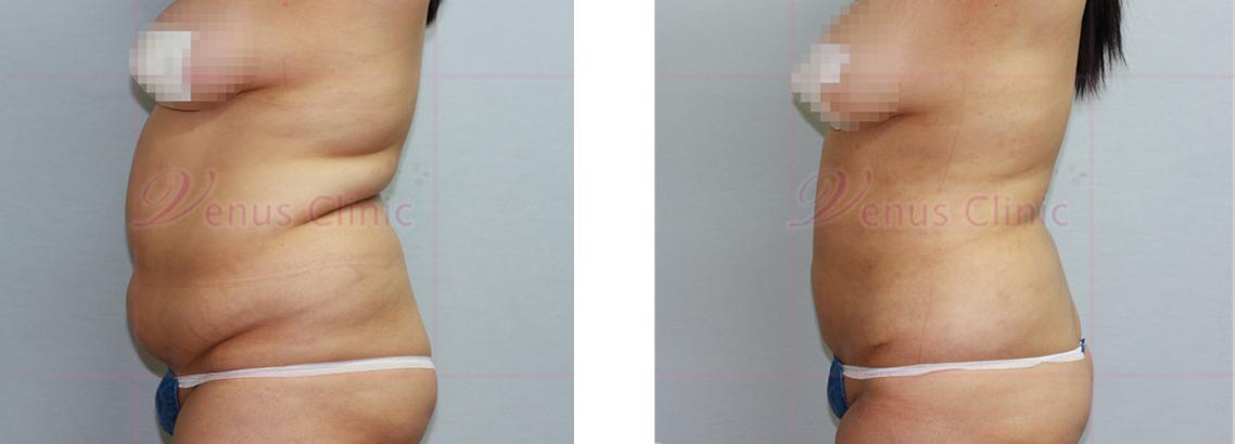 복부 지방흡입 전후사진2