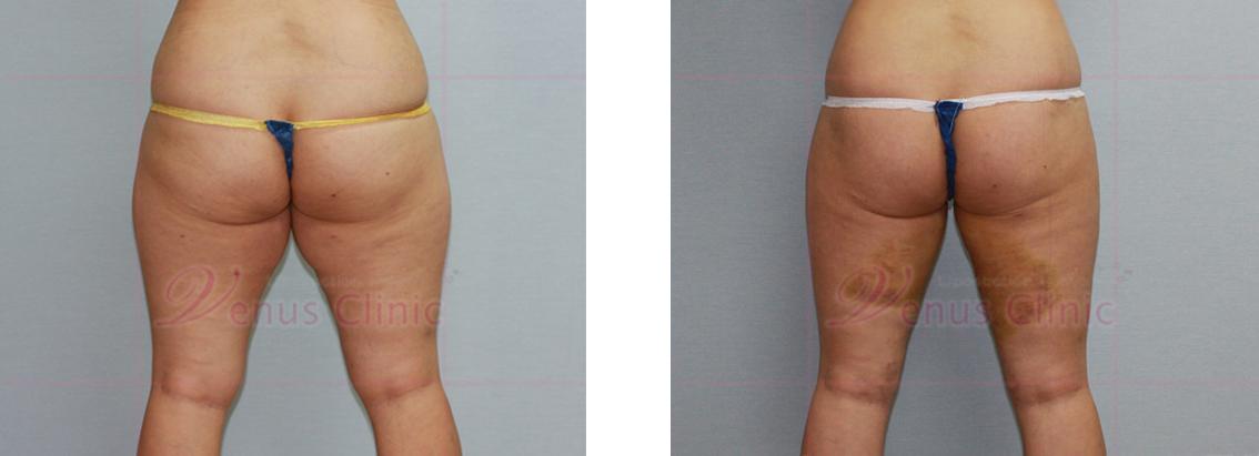 안쪽 허벅지(Medial thigh) 지방흡입2