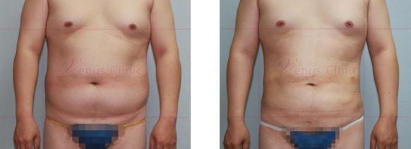 남자복부(Male abdomen) 지방흡입