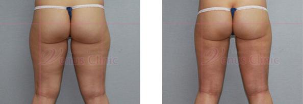 외측허벅지(lateral thigh) 지방흡입