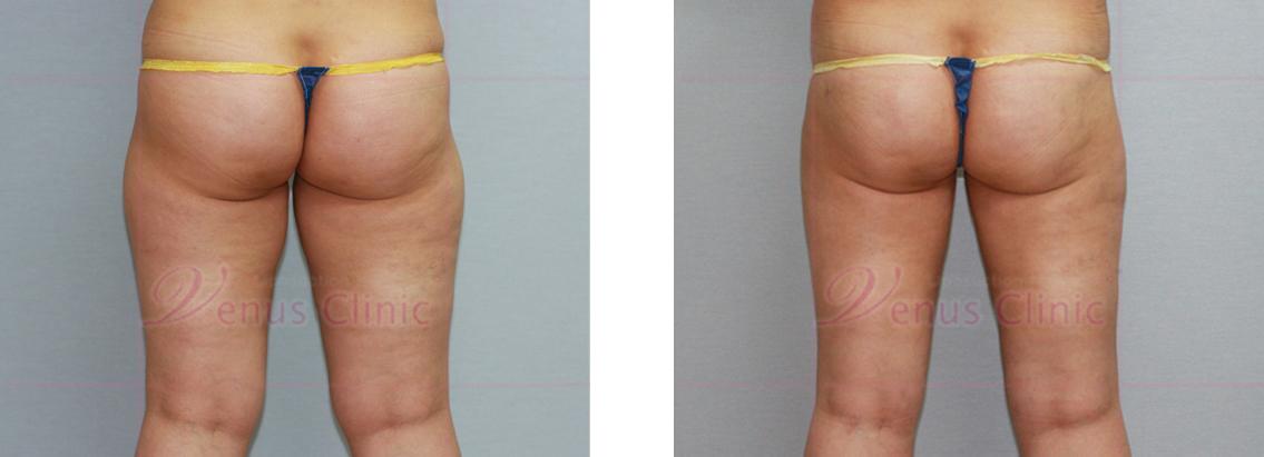 뒤쪽 허벅지의 위쪽부위(Upper posterior thigh) 지방흡입1