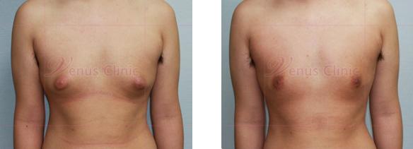 남자 가슴(Male chest) 지방흡입