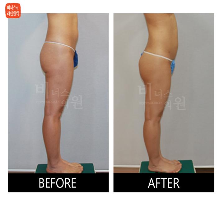 엉덩이 쳐짐과 이중주름 러브핸들 지방흡입 재수술3_.jpg