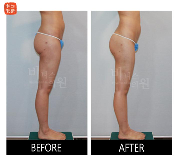 엉덩이 쳐짐과 이중주름 러브핸들 지방흡입 재수술4_1.jpg
