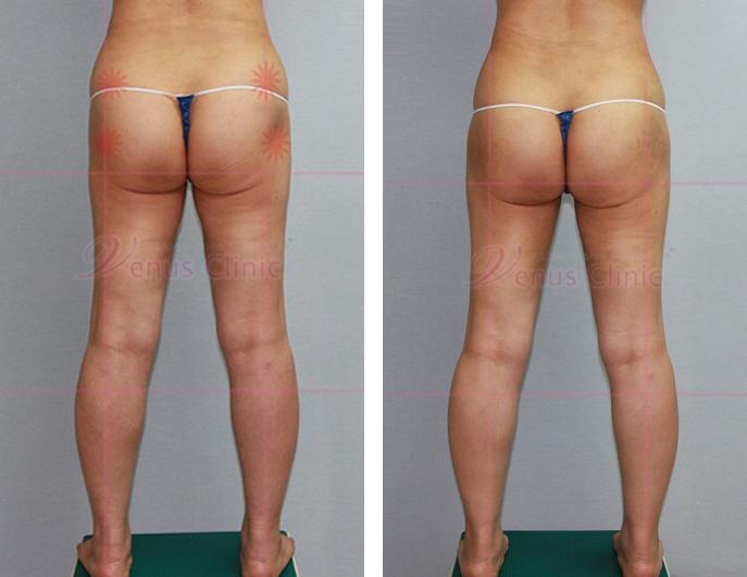 팔 지방흡입 재수술 케이스-3.jpg