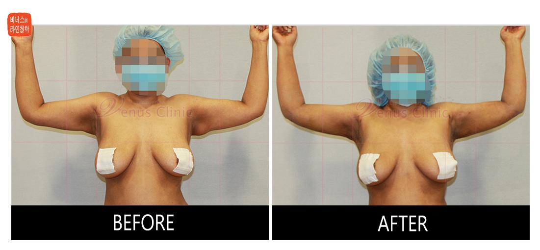 팔지방흡입재수술.jpg