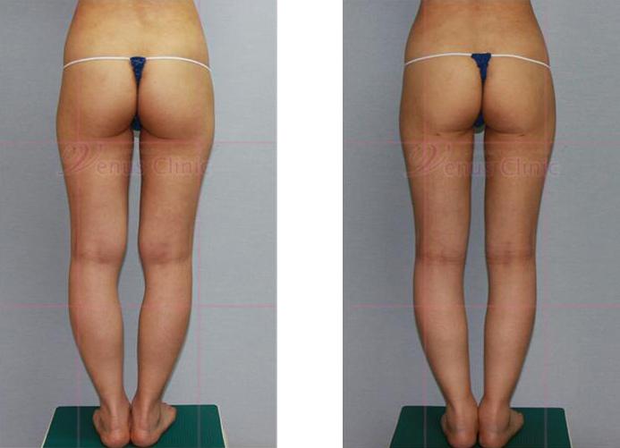허벅지와 엉덩이 지방흡입 전후사진5