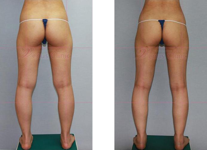 허벅지와 엉덩이 지방흡입 전후사진4