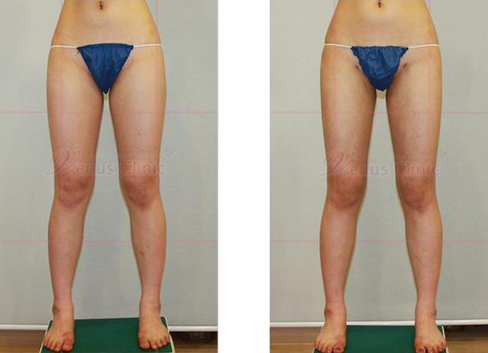 허벅지와 엉덩이 지방흡입 전후사진1