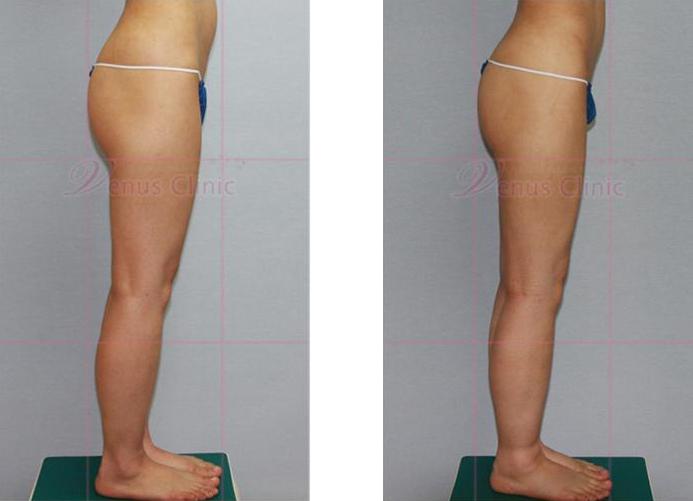 허벅지와 엉덩이 지방흡입 전후사진3