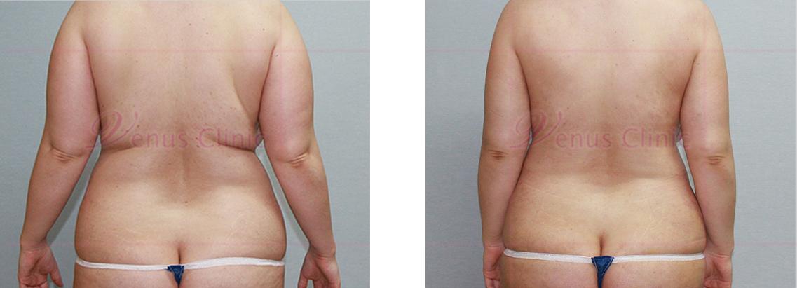 복부 지방흡입 후면 사진2
