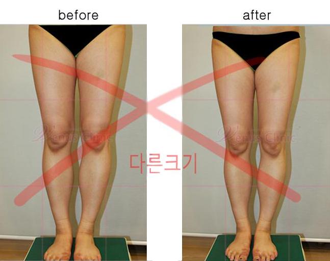 의학적 전후사진 비교3
