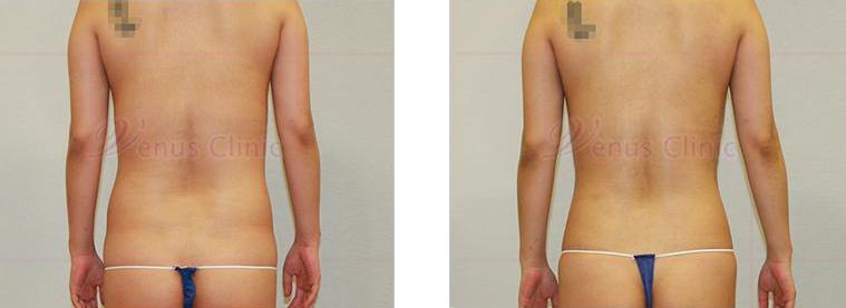 복부 지방흡입 후면 사진1