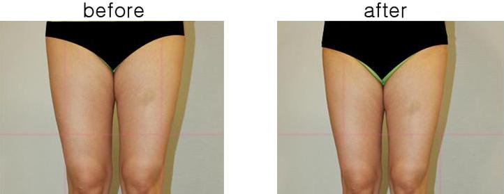의학적 전후사진 비교1