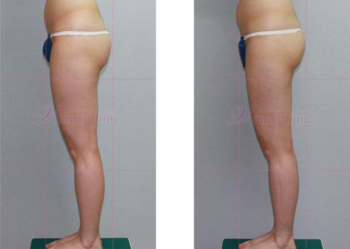 허벅지와 엉덩이 지방흡입 전후사진2