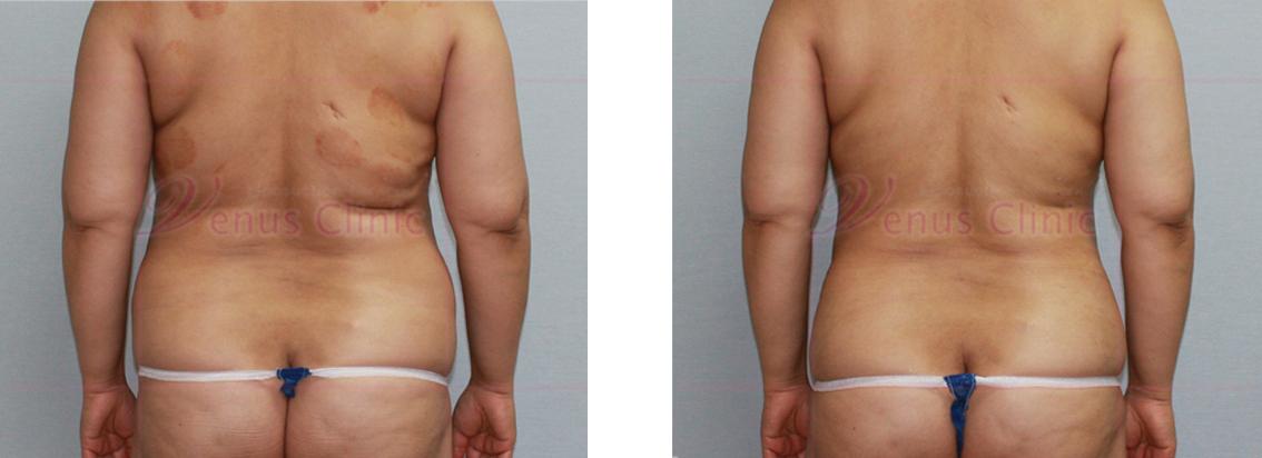 복부 지방흡입 전후사진 후면