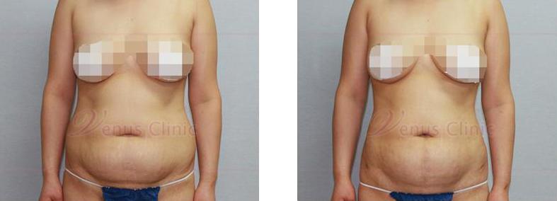 복부 지방흡입 전후사진