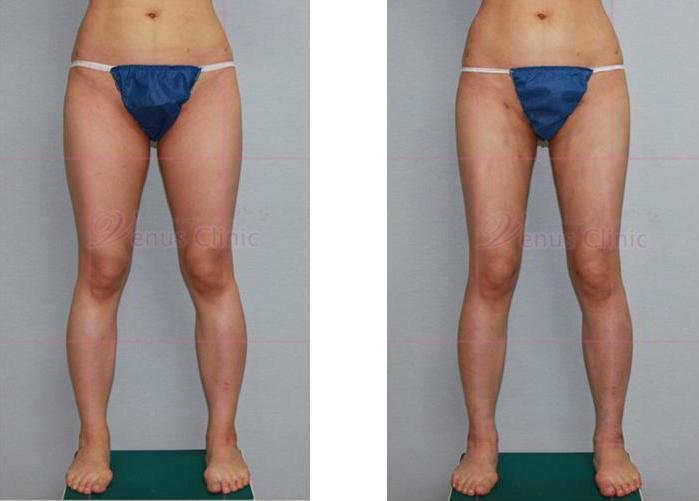 허벅지 지방흡입 전후사진