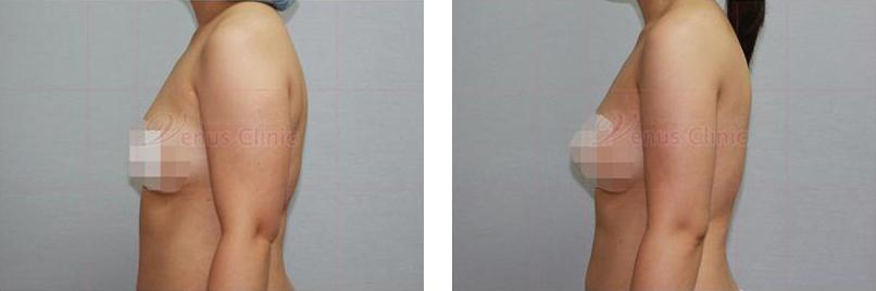 팔지방흡입 전후사진