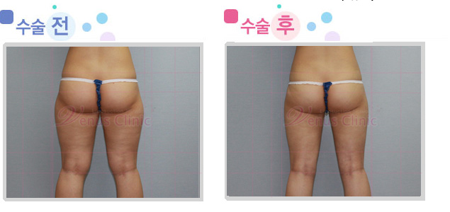 엉덩이와 허벅지 지방흡입 전후사진2