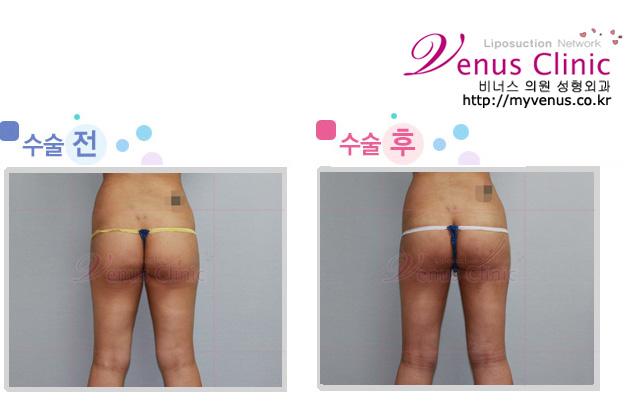 엉덩이와 허벅지 지방흡입 전후사진3