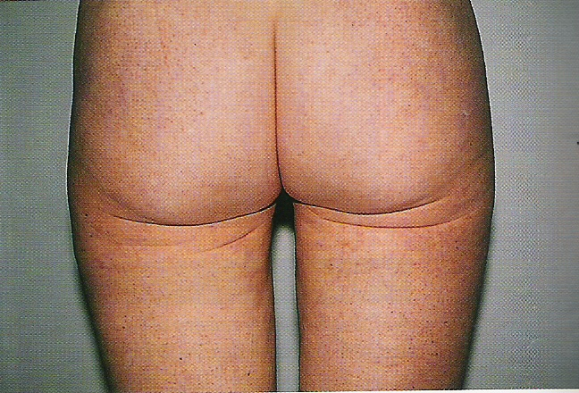엉덩이 받침대의 이중주름
