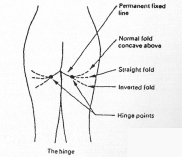 엉덩이 받침대 주름의 다양한 형태