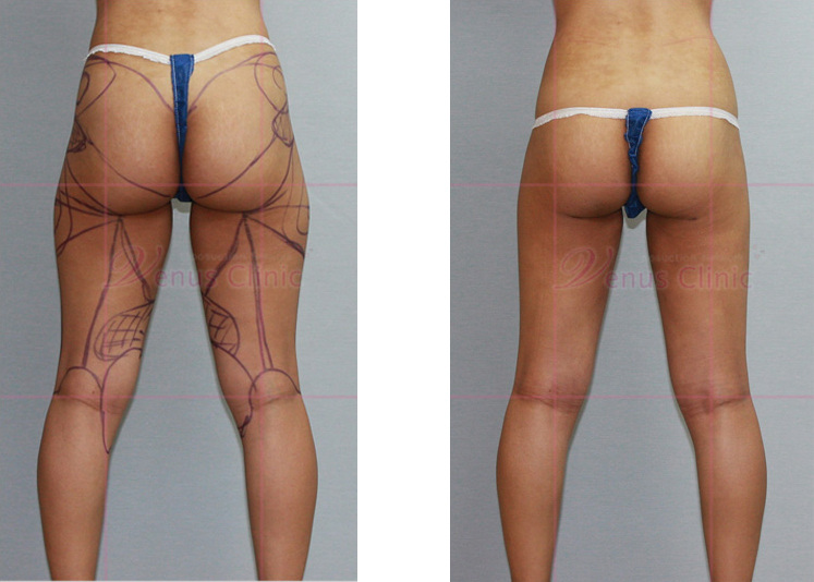 허벅지 지방흡입 전후사진 뒷면
