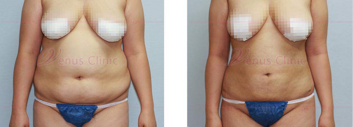 복부 지방흡입 전후사진1